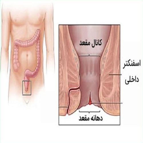 جراحی بیماری های نشیمنگاهی را فراموش کنید! لیزر بهترین جایگزین برای جراحی