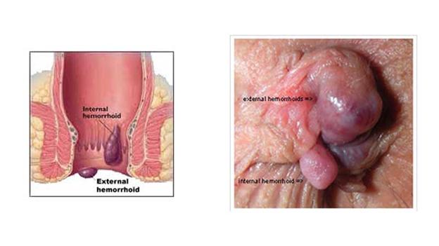 روش های درمان هموروئید خارجی را بهتر بشناسید | بواسیر خارجی